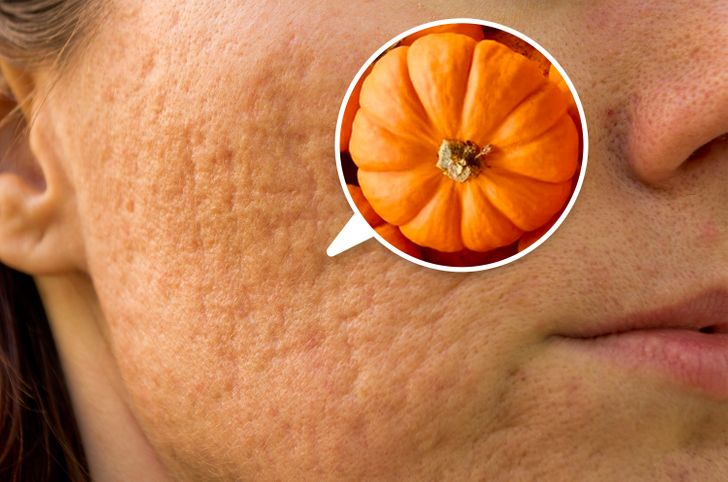 7 Foods That Reduce Acne Scars