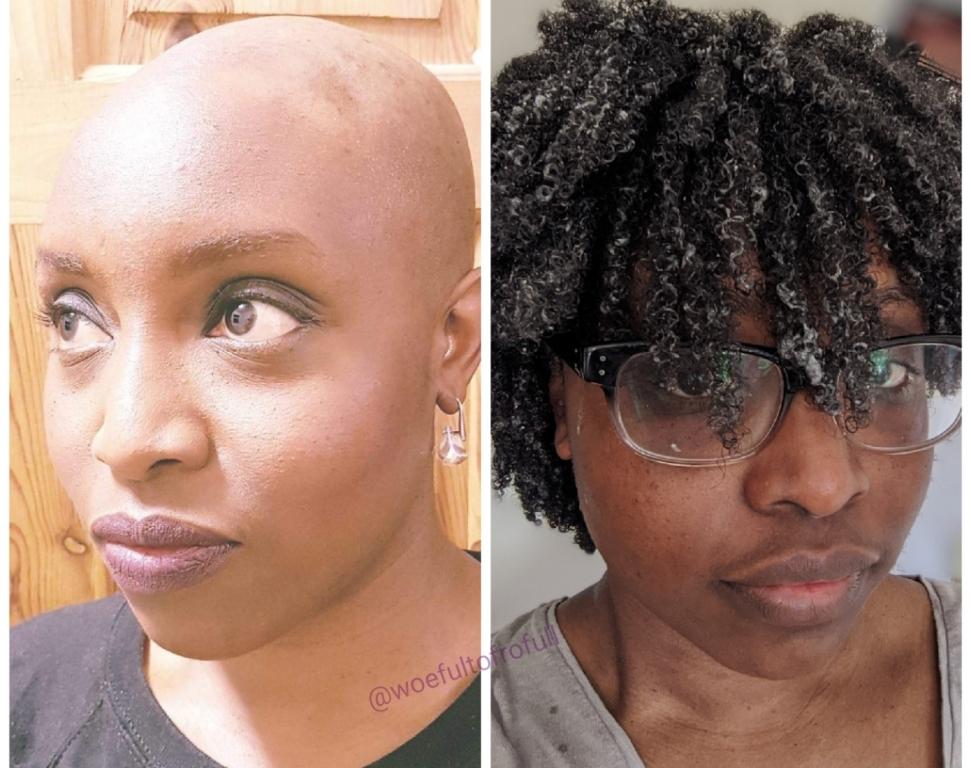 hair growth comparison
