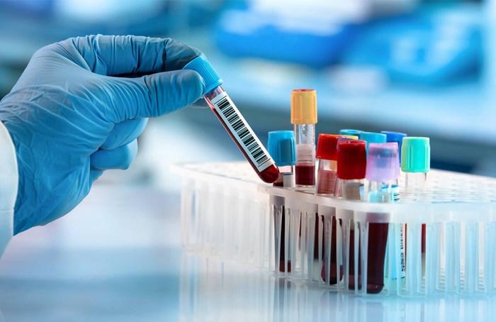 Nueva prueba de sangre detecta hasta 50 tipos de cáncer