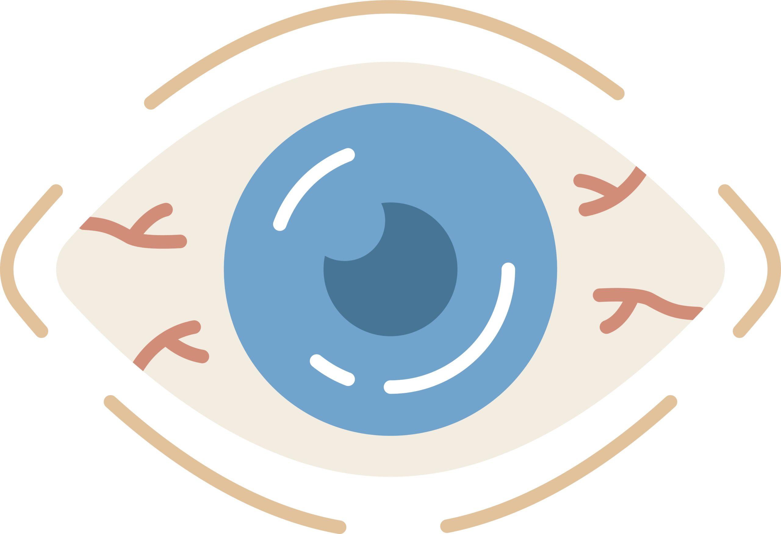 Síndrome del ojo seco: ¿cómo saber si lo padeces?