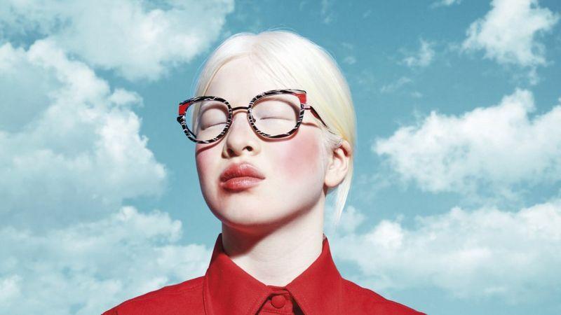 De bebé abandonada por ser albina, a portada de la revista Vogue