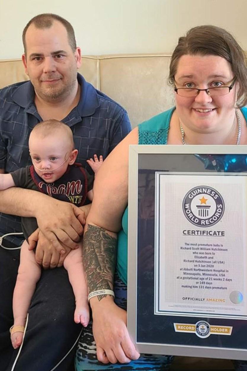 el bebé más prematuro del mundo entra al record guinness
