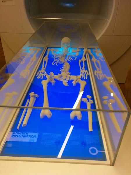 Richard's skeleton