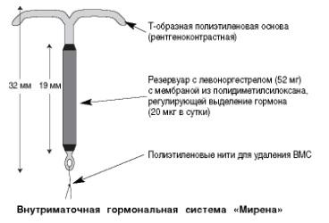 Внутриматочная спираль при варикозном расширении вен. Варикозное расширение вен матки. Варикоз и виды ОК