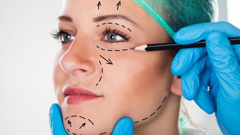 Afbeeldingsresultaat voor plastische chirurgie