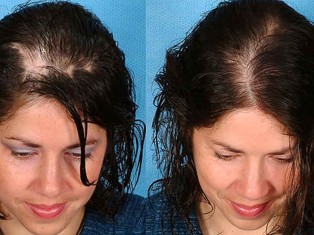Teri Murphy -Before & After Hair Loss Recovery-Sytropin