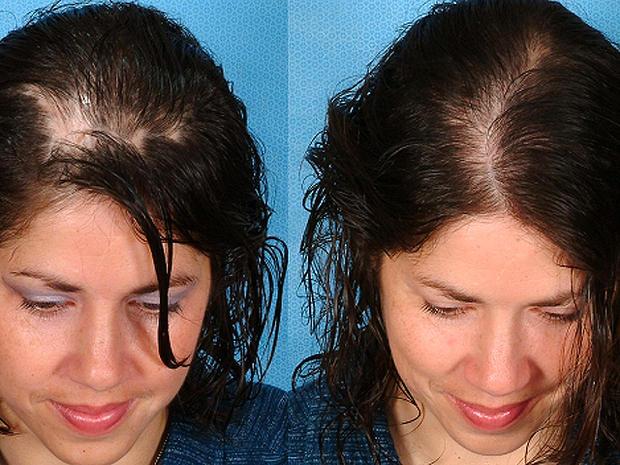 Teri Murphy -Before & After Hair Loss Recovery-Sytropin