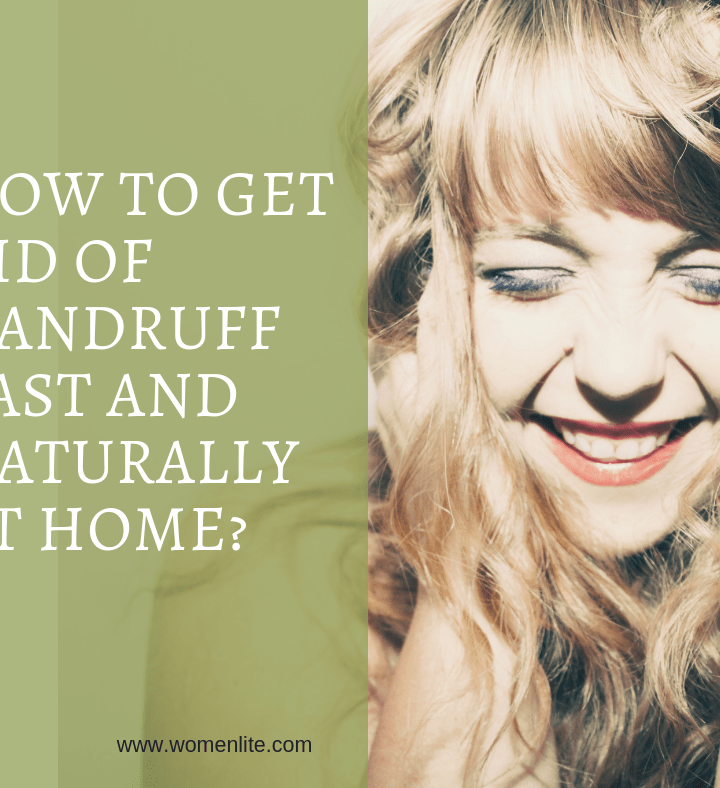 How to Get Rid of Dandruff Fast and Naturally at Home?