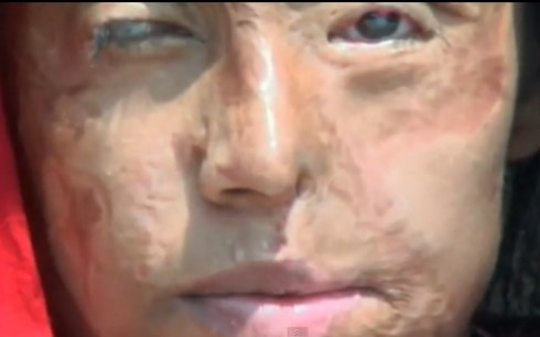 Face of an acid attack victim in Pakistan