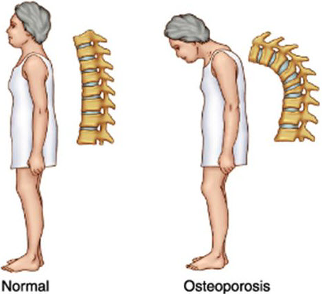 Prevent Osteoporosis