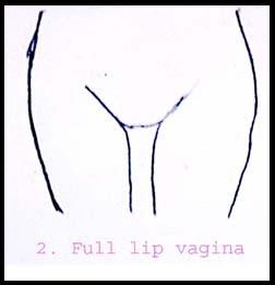 type of vagina