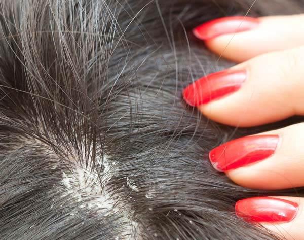 hair dandruff treatment, hair dandruff home remedies