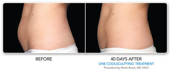 Before and after coolsculpting treatment