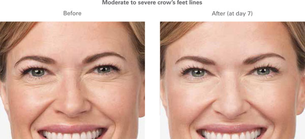 botox-before-after-3