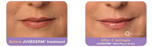 Before and after Juvederm treatment