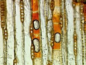 Taxodium_axial_par