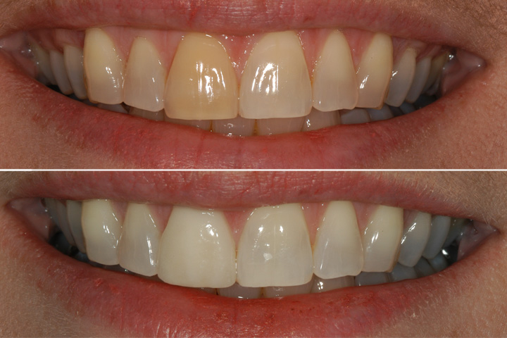 teeth whitening dentist amarillo texas