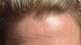 Botox_Before_1
