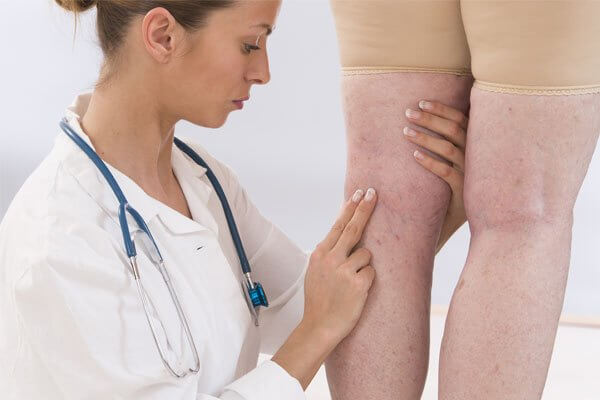 novo tratamento de varizes