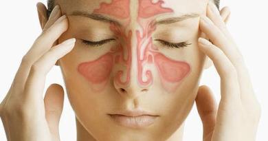 O que é Sinusite, suas causas e sintomas