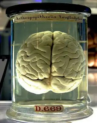 476px-Chimp_Brain_in_a_jar