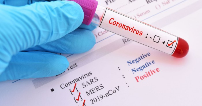 Coronavirus can remain in air for 3 hours, live on plastic for days, new study says