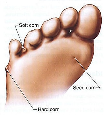 Foot Corn Cure