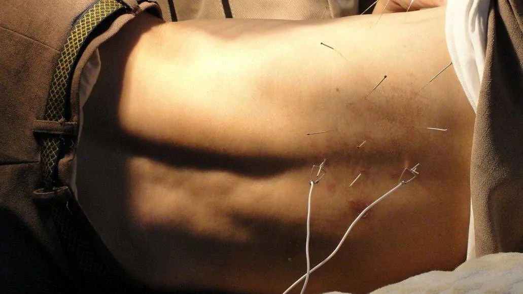 Man getting acupuncture on back
