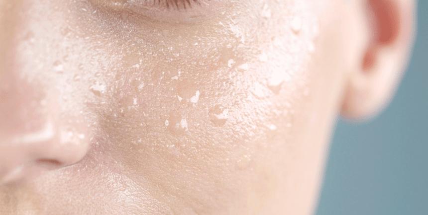 Жирная кожа лица: основные причины