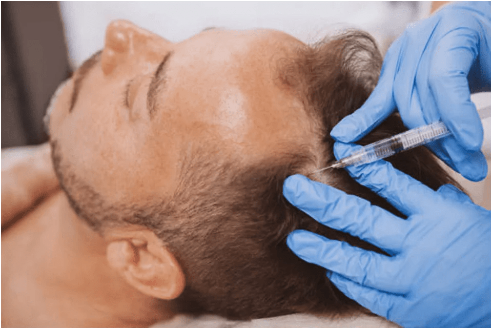 How do I reduce Hair Loss Problems Naturally?