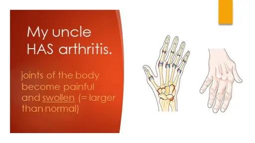 My uncle has arthritis.
