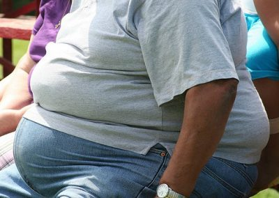 Obesity-photo