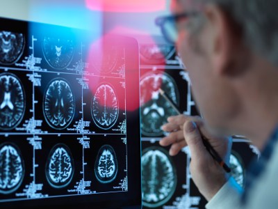 Doctor viewing brain scans for possible disease or damage in clinic