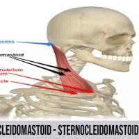 Sternocleidomastoid | Pain