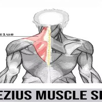 Trapezius Muscle Spasm