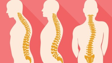Most Common Spinal Conditions