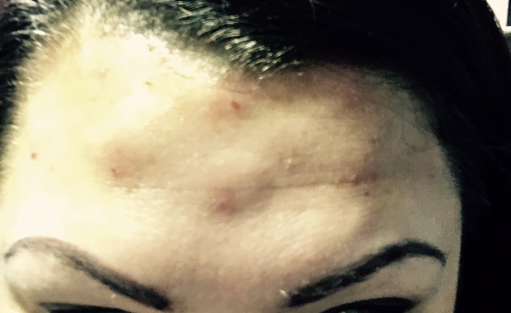 Considering Getting Botox