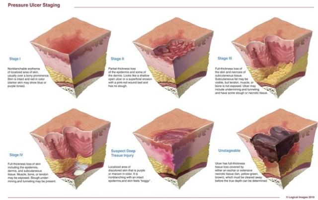stadiazione dell'ulcera da pressione