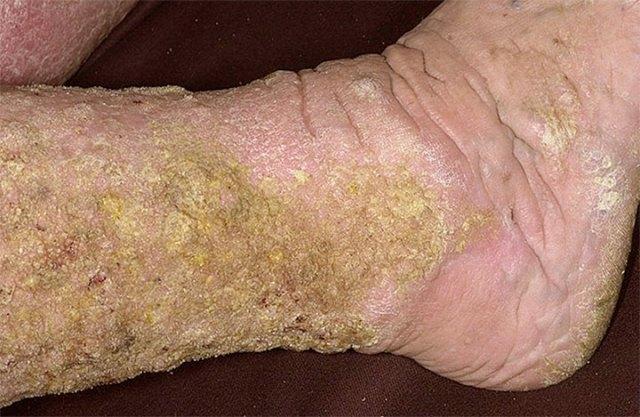 Dermatite venosa