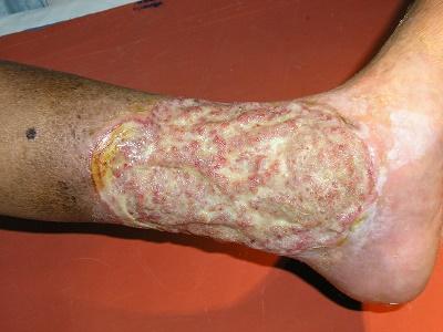 Varicose Veins Treatment India , cellulitis