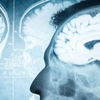 VA Admits It Failed To Properly Diagnose 24,000 Vets With Traumatic Brain Injury