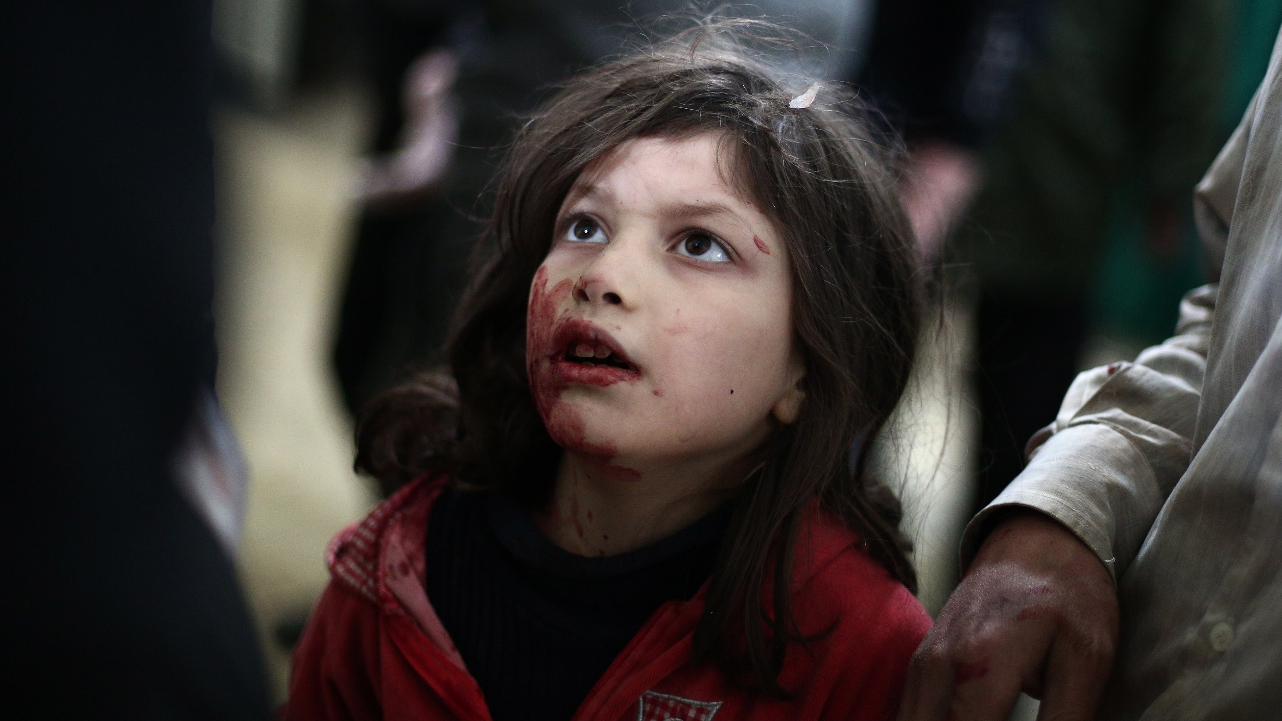 syria-girl-wounded