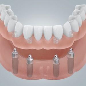 4 Zahnimplantate mit Kugelkopfanker
