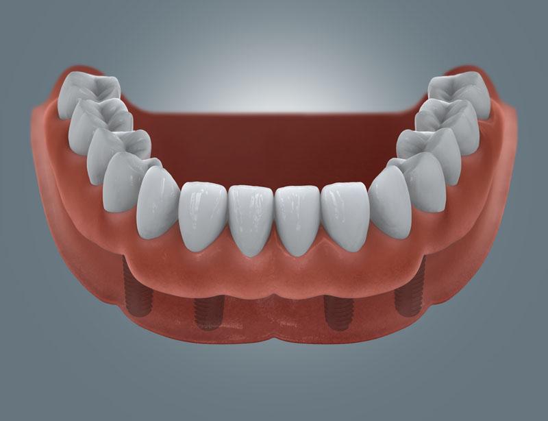 herausnehmbare Prothese über 4 Zahnimplantate
