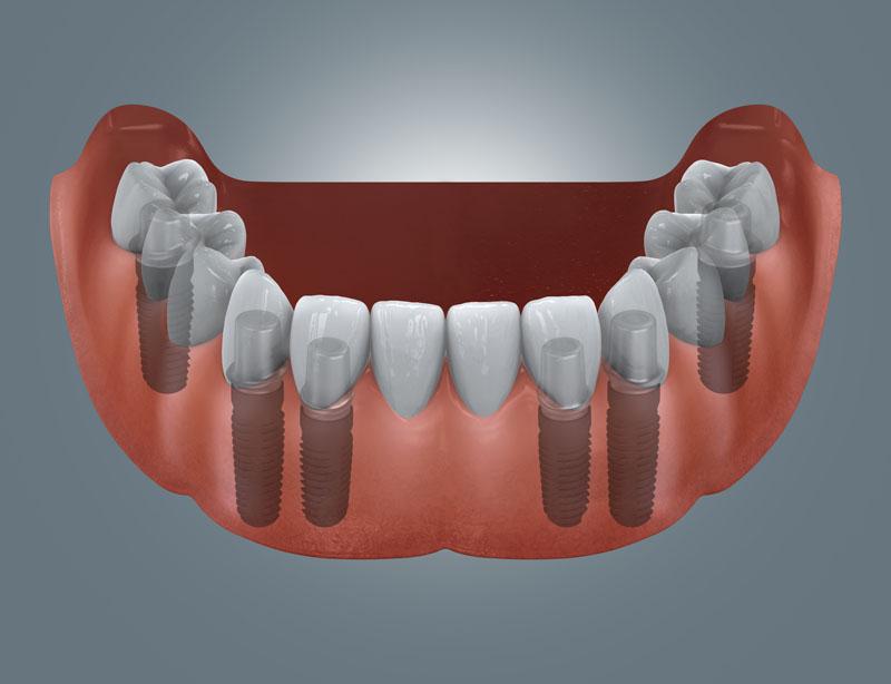 feste Brücke auf 6 Implantaten