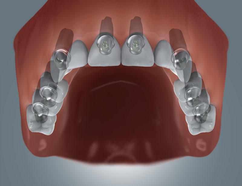 festsitzende Brücke / 8 Zahnimplantate