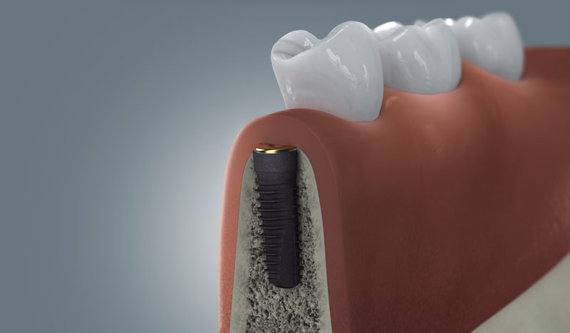 Osseointegration des Implantat