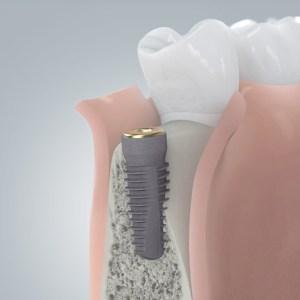 Freilegung des Implantats