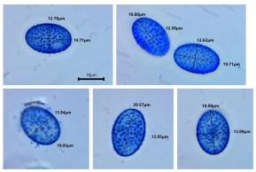 Scutellinia subhirtella spores