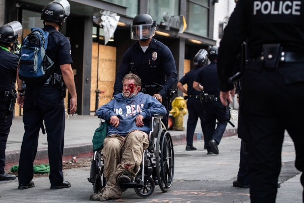 Reversing course, LAPD will now allow officers to use some less-lethal projectiles during protests